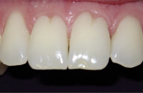 Dr Carella Case Study, Before