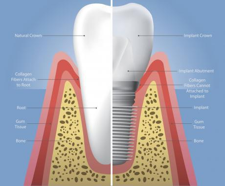 Dental Implant graphic showing cross section of a tooth.