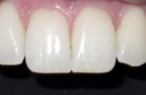 Dr Carella Case Study, After